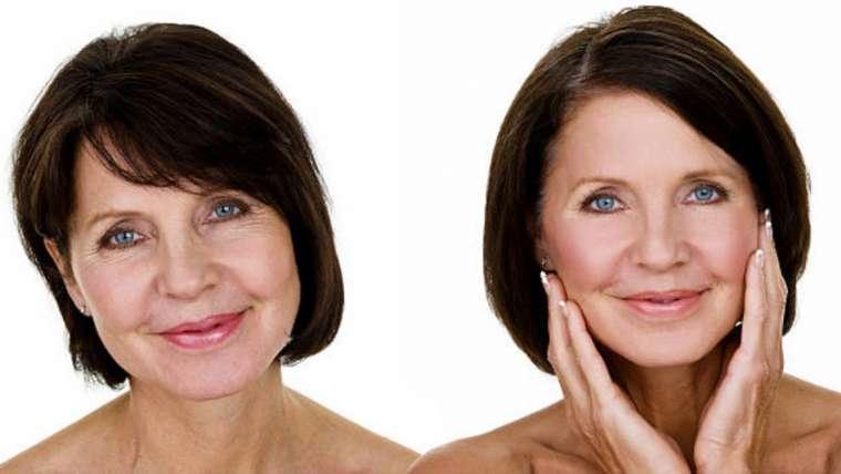 4D-Sculpt Non-Surgical Facelift & Skin Tightening