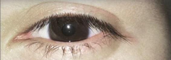 Eyelashes before H2o