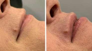 4D-Sculpt Specialist Treatments